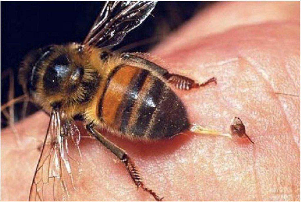 Picaduras avispa y abeja